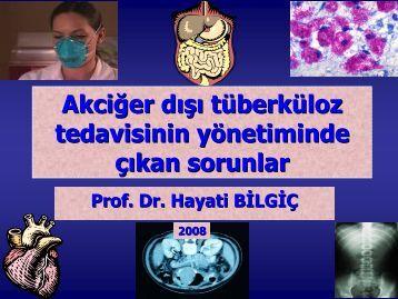Akciğer Dışı Tüberküloz tedavisi