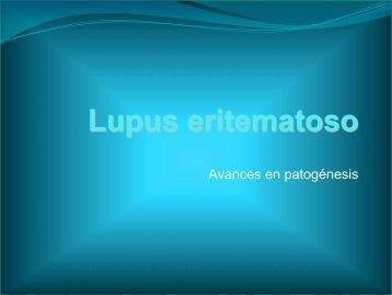 Fisiopatología del lupus eritematoso generalizado - Sociedad ...