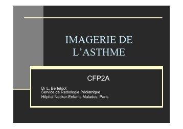 Imagerie dans l'asthme - Société pédiatrique de pneumologie et d ...