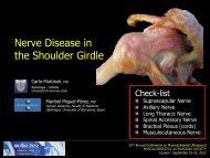Nerve Disease in the Shoulder Girdle