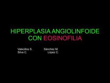 hiperplasia angiolinfoide con eosinofilia - PIEL-L Latinoamericana