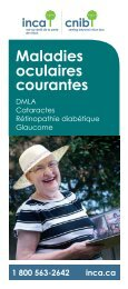 Maladies oculaires courantes - Charity Focus