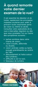 Maladies oculaires courantes - Charity Focus - Page 2