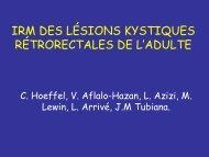 IRM DES LÉSIONS KYSTIQUES RÉTRORECTALES DE L'ADULTE