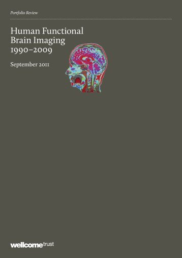Human Functional Brain Imaging 1990–2009 - Wellcome Trust