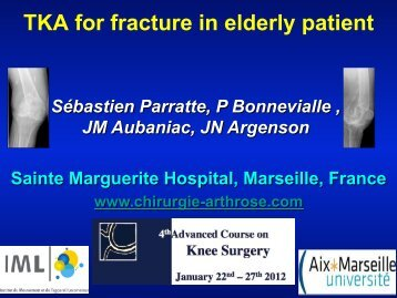 PARATTE TKA fracture VAL DISERE OK.pdf