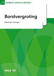 Borstvergroting - Mca