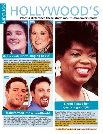 comments on Celebrities teeth - NYC Smile Design