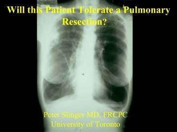 Will this Patient Tolerate a Pulmonary Resection? - virtanes