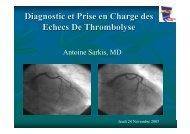 Diagnostic et Prise en Charge des Echecs De Thrombolyse