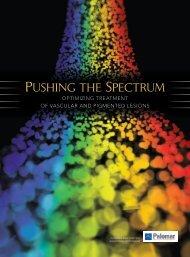 Pushing the sPectrum - Palomar Medical Technologies