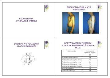 Fizjoterapia w chirurgii 5