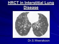 High resolution CT in Interstitial Lung Diseasesby Dr