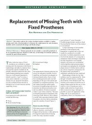Replacement of Missing Teeth with Fixed Prostheses - Oxford Deanery