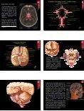 Blutkreislauf • Hoch- und Niederdrucksystem • Arterien des Rumpfes ... - Seite 6