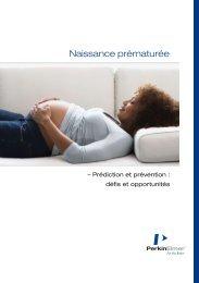 Naissance prématurée