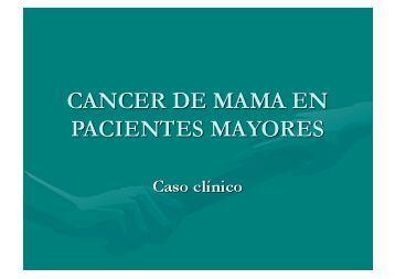 CANCER DE MAMA EN + PACIENTES MAYORES - IGBA