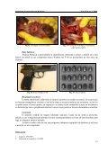 Leziuni tanatogeneratoare produse de armă cu aer comprimat ... - Page 5