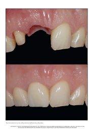 The International Journal of Periodontics & Restorative Dentistry