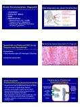 Schematischer Zeitablauf der Koronaren Herzkrankheit ... - Seite 4
