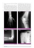 Adli Hekimlikte Yaş Tayini - Klinik Gelişim - Page 4