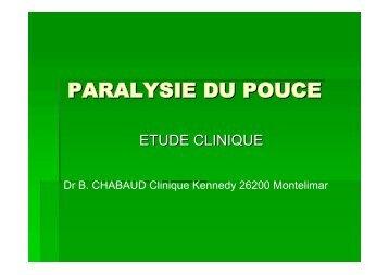 Paralysie du pouce: Sémiologie - ClubOrtho.fr