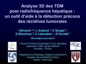 Analyse 3D des TDM post radiofréquence hépatique : un outil d'aide ...