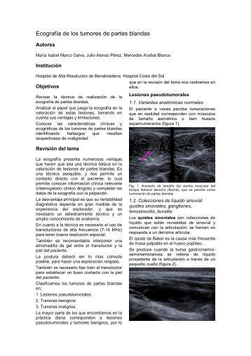 Ecografía de los tumores de partes blandas