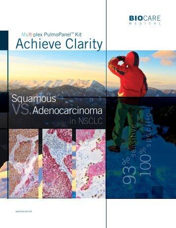 Achieve Clarity