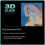 Fine tuning the BLP - 3D Click Guide