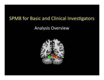 Clinical fMRI LEC14 SPM Analysis Overview.pptx - Neurometrika