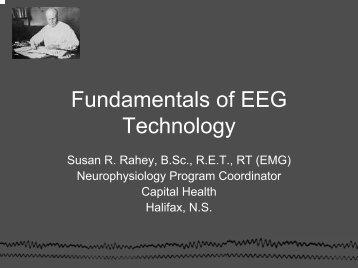 Fundamentals of EEG Technology - Canadian Neurological ...
