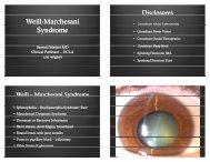 Weill-Marchesani Marchesani Syndrome