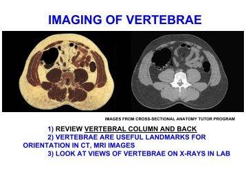 IMAGING OF VERTEBRAE