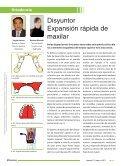 Artículo Disyuntor. Expansión rápida de maxilar - Denthum - Page 2