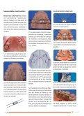 Artículo Disyuntor. Expansión rápida de maxilar - Denthum - Page 3