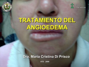 tratamiento-del-angioedema-atd-2008-pdf - PIEL-L Latinoamericana