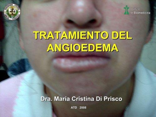 angioedema facial tratamiento