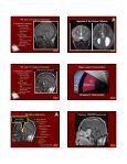 Critical Imaging Diagnoses: - Radiology - Page 4