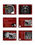 Critical Imaging Diagnoses: - Radiology - Page 5
