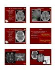Critical Imaging Diagnoses: - Radiology - Page 7