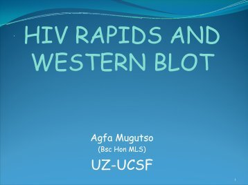 HIV Rapids and Western Blot