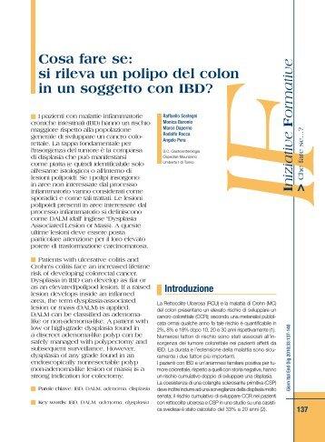 si rileva un polipo del colon in un soggetto con IBD? - Sied