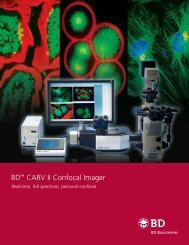 Confocal CARV II Imager - Advanced Imaging Concepts