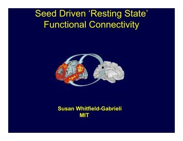 Seed Driven 'Resting State' Functional Connectivity - Neurometrika