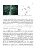 Managementul fistulelor pancreatice post-operatorii - Chirurgia - Page 3