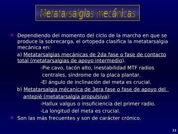 Metatarsalgias mecánicas: inestabilidad MTF