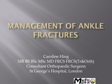 Management of ankle fractures - MOTEC LIFE-UK