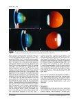 Pseudoduplication of the optic nerve head - Pesudovs - Page 2