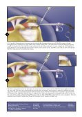 Rotator Cuff Biotenodesis - ShoulderDoc.co.uk - Page 3